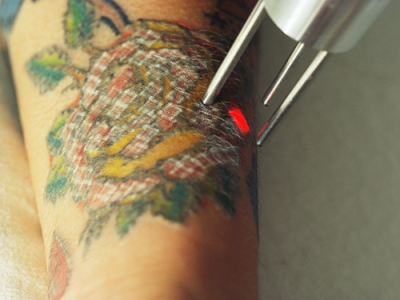 Tattoo removal school los angeles tattoo removal for The order tattoo los angeles